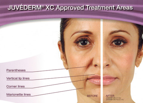 Think, Commercial facial line fillers sorry, not